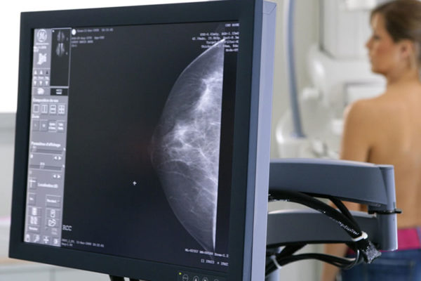 Mammografia2